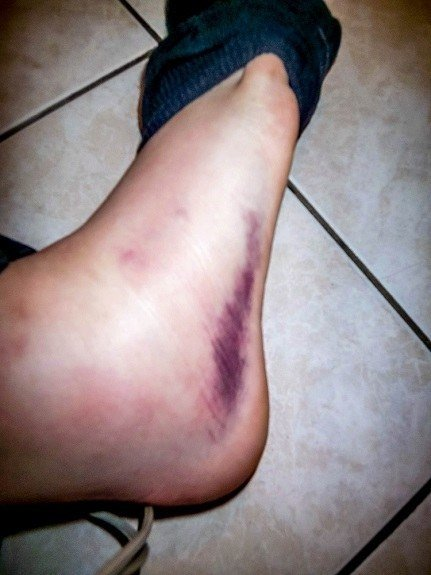 Laura's greatest travel mishap - spraining her ankle in Italy